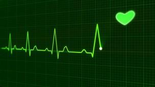 心電図。精神科・心療内科でなぜするの